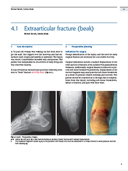 Book Chapter on Extra-articular Calcaneal Fracture Treatment