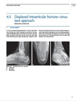 Book Chapter on Minimally Invasive Calcaneus Fracture Treatment